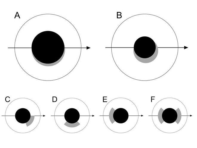 Disposición de la heterocromía asimétrica en los ojos de los torillos y otras aves