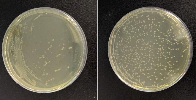 Algunas de las cepas de la 'E. coli' sintética