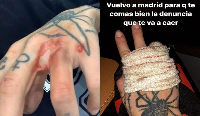 Valeria Quer mostró las heridas tras la paliza que le dio su exnovio.