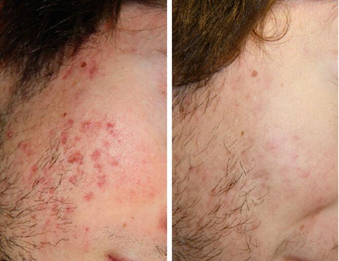 Antes y después del tratamiento Acnelan