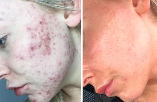 Antes y después del tratamiento Morpheus8