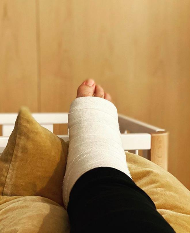 La pierna de Risto Mejide, escayolada
