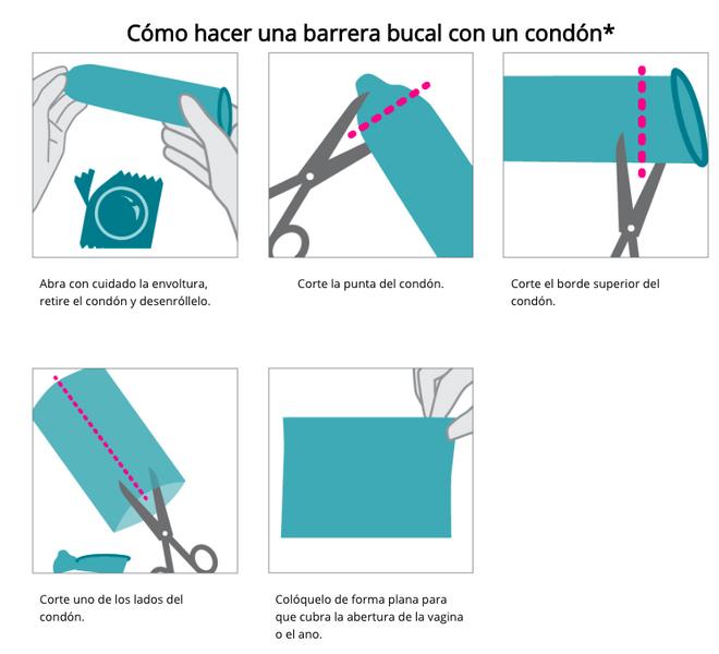 Hacer una barrera de latex con un condón