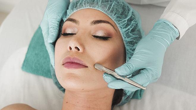 Tratamiento con láser sobre la piel del rostro