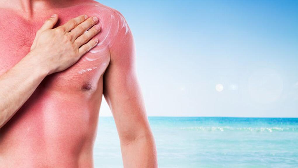 Siete claves para proteger tu piel del sol