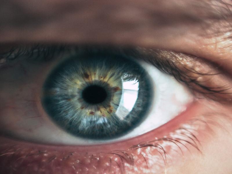 ojo seco sindrome causas solucion