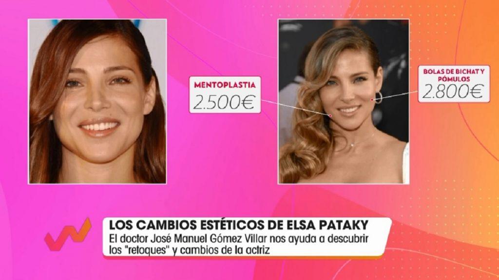 Elsa Pataky se ha hecho una mentoplastia y pómulos