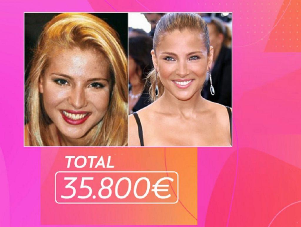 Elsa Pataky se habrá gastado en operaciones más de 35.000 euros
