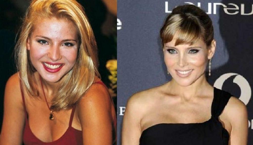 El antes y el después de Elsa Pataky tras operarse