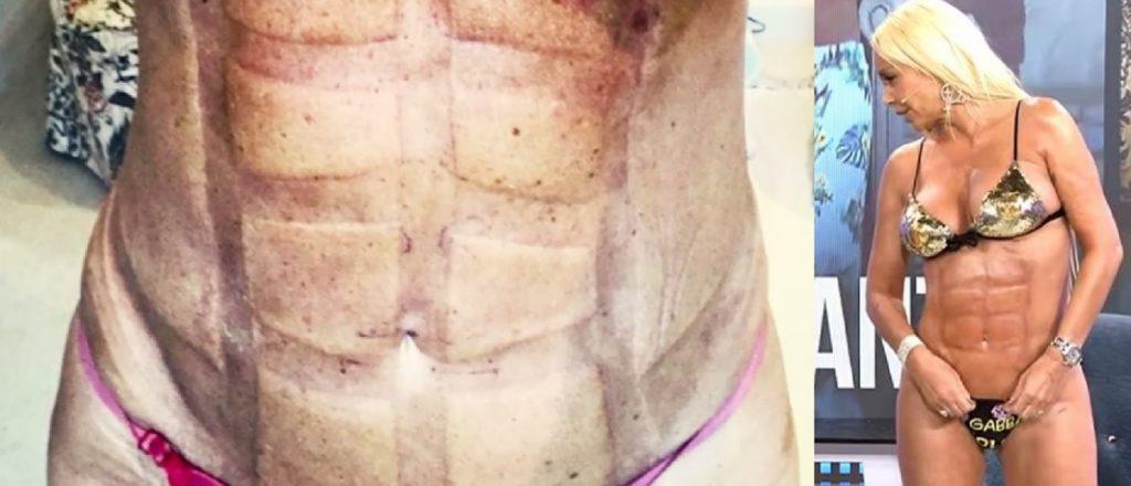 Leticia Sabater se hizo una abdominoplastia