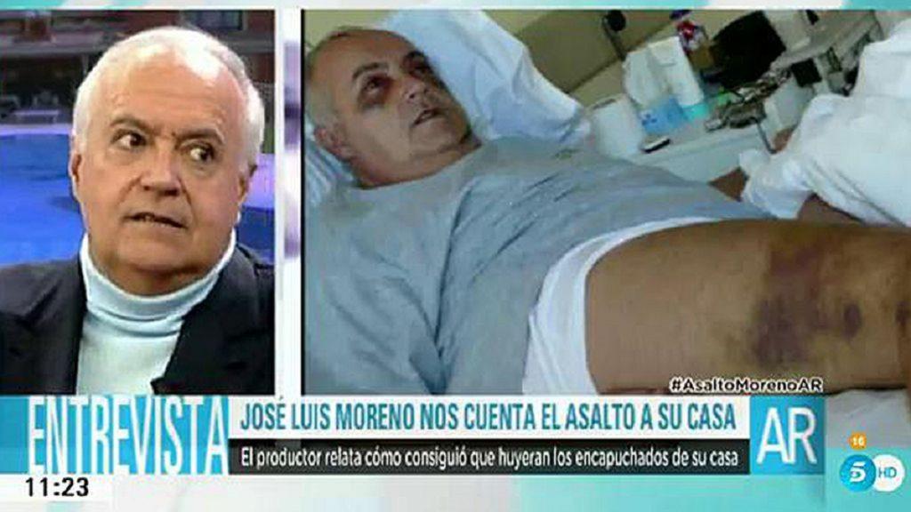 José Luis Moreno recibió una paliza tras encararse a los ladrones