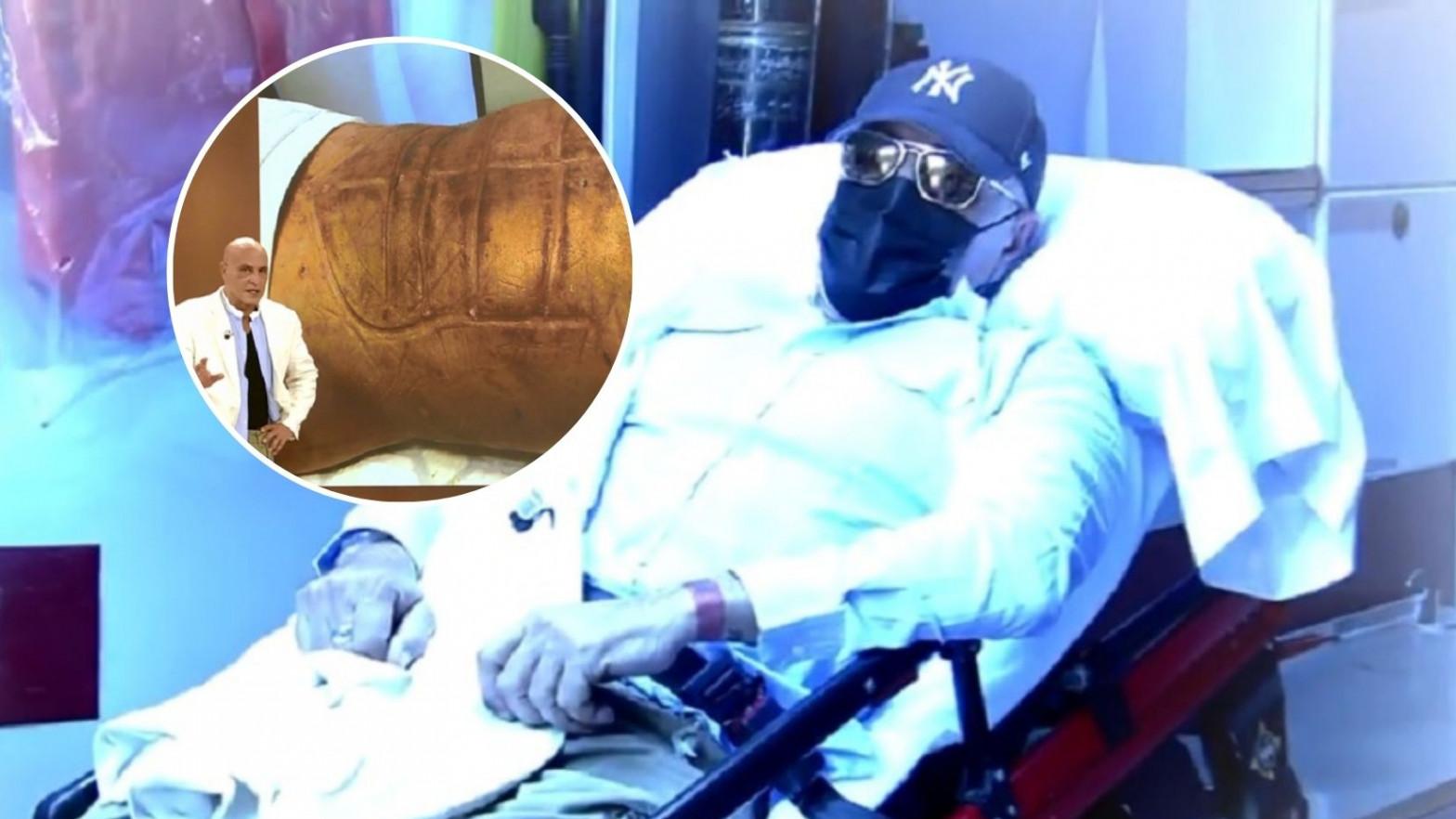 Kiko Matamoros muestra cómo se ha quedado después de las operaciones